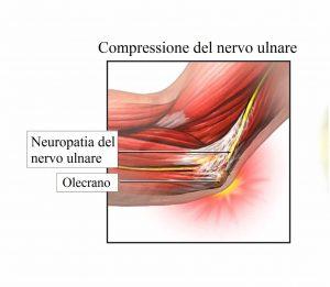 Compressinoe del nervo ulnare,infiammato