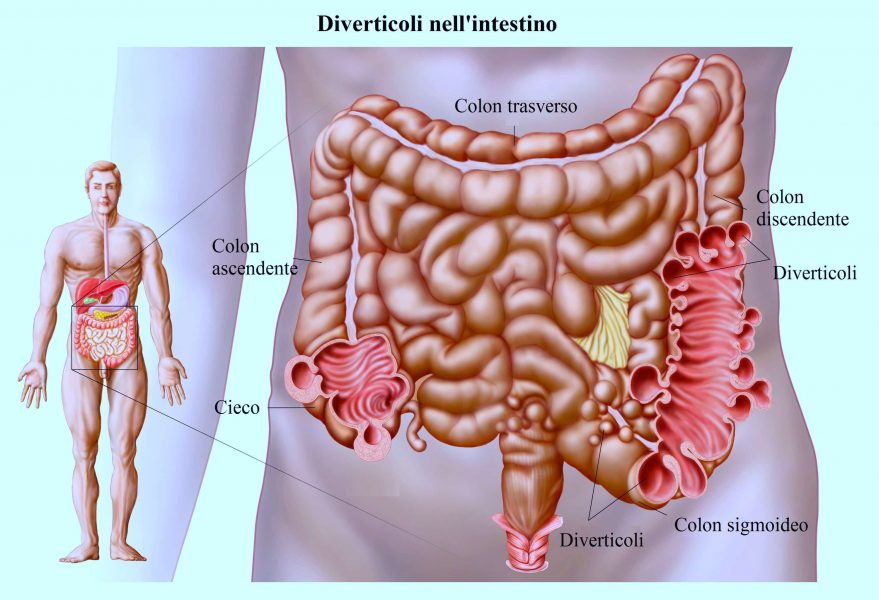 Diverticolite,colon,diverticoli