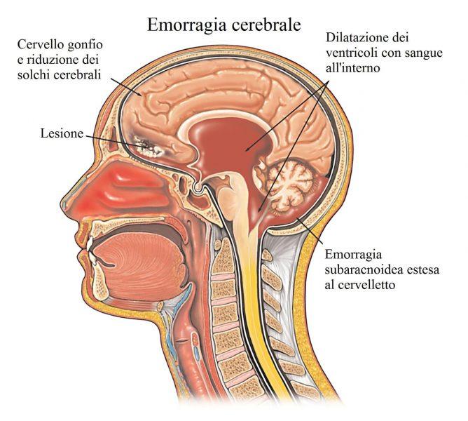 Emorragia cerebrale,ematoma