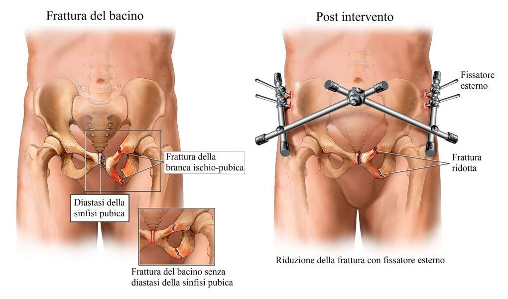 Frattura del bacino,intervento chirurgico,fissatore esterno