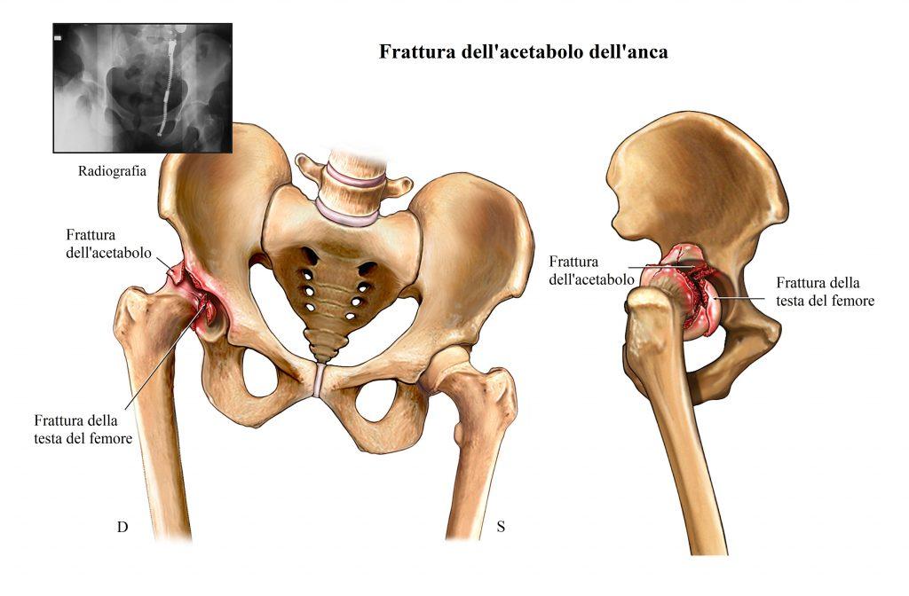 Frattura dell'anca,testa del femore,acetabolo