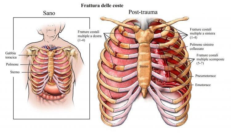 Frattura delle costole,pneumotorace,emotorace