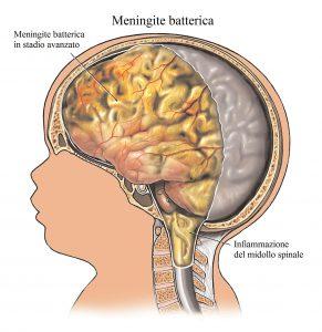Meningite,dolore al collo,nuca,rigidità