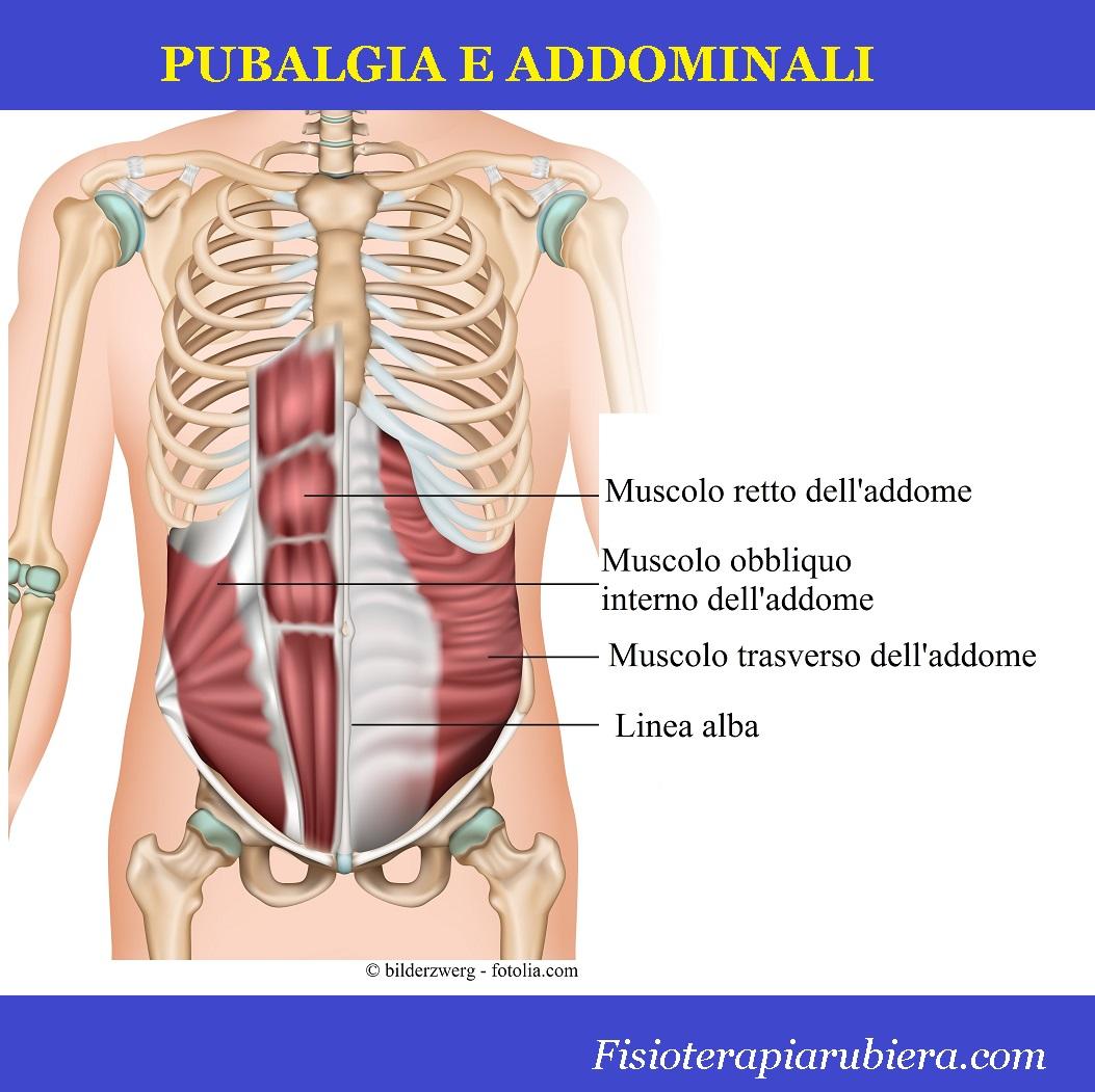 muscolo trasverso addome, linea alba