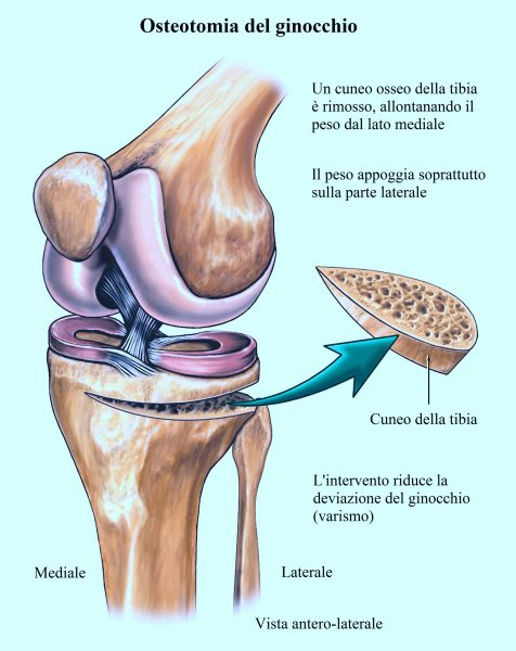 Osteotomia del ginocchio, intervento,artrosi,valgismo