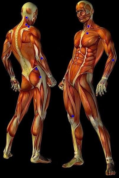 I tender point: Inserzione dei muscoli occipitali