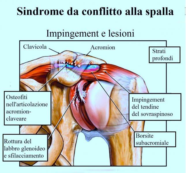 Sindrome da conflitto alla spalla,impingement,osteofiti,rottura del labbro glenoideo,borsite