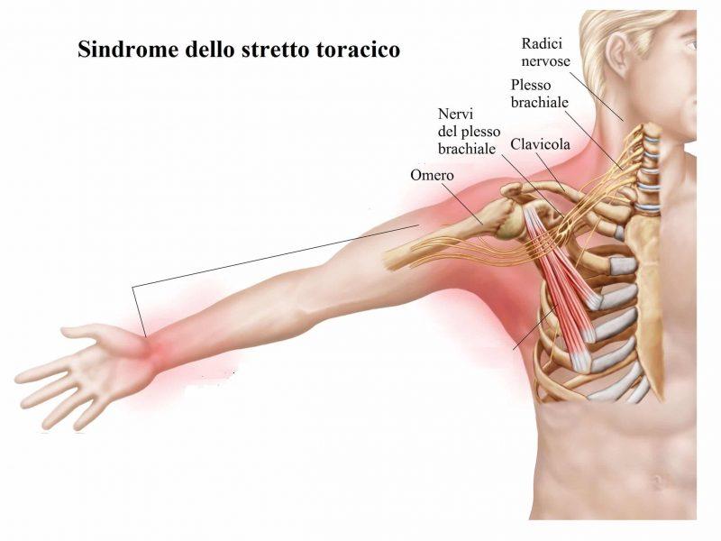 Dolore al braccio,sindrome dello stretto toracico