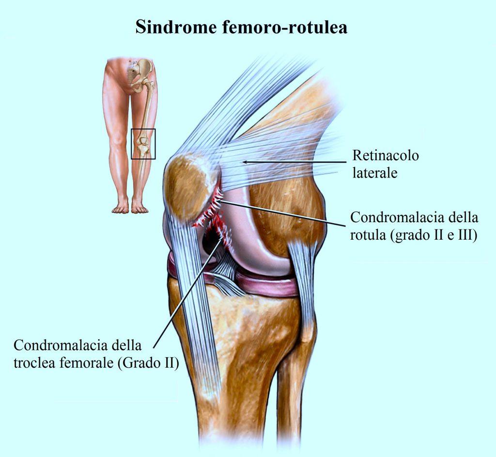 Sindrome femoro rotulea,condromalacia