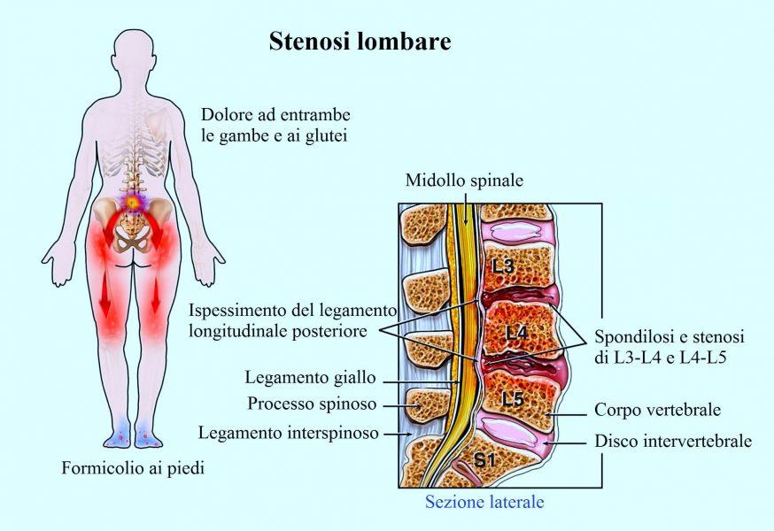 Stenosi lombare,mal di schiena