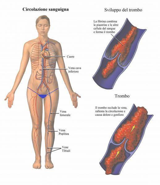 Trombosi,trombo,coagulo di sangue,aterosclerosi