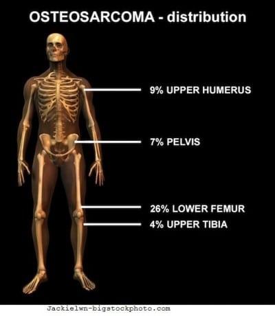 Tumore osseo