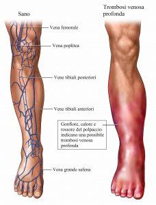 trombosi venosa profonda,rossore,calore,gonfiore,gamba