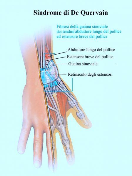 Sindrome di De Quervain,pollice,polso