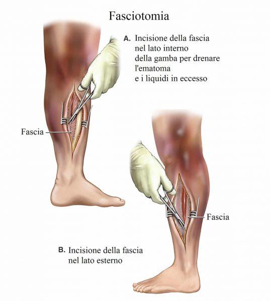 fasciotomia,sindrome compartimentale