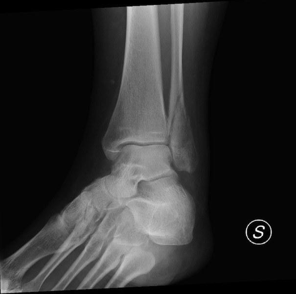 frattura,spiroide,radiografia,malleolo,perone,esterno,laterale,gamba,dolore,lesione,infiammazione