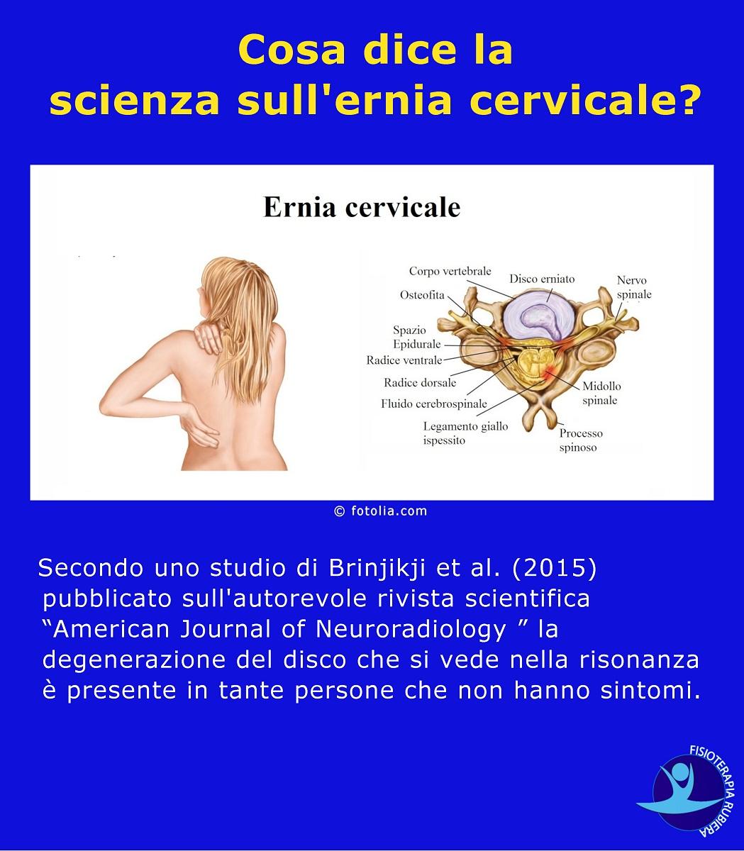Cosa dice la scienza sull'ernia cervicale