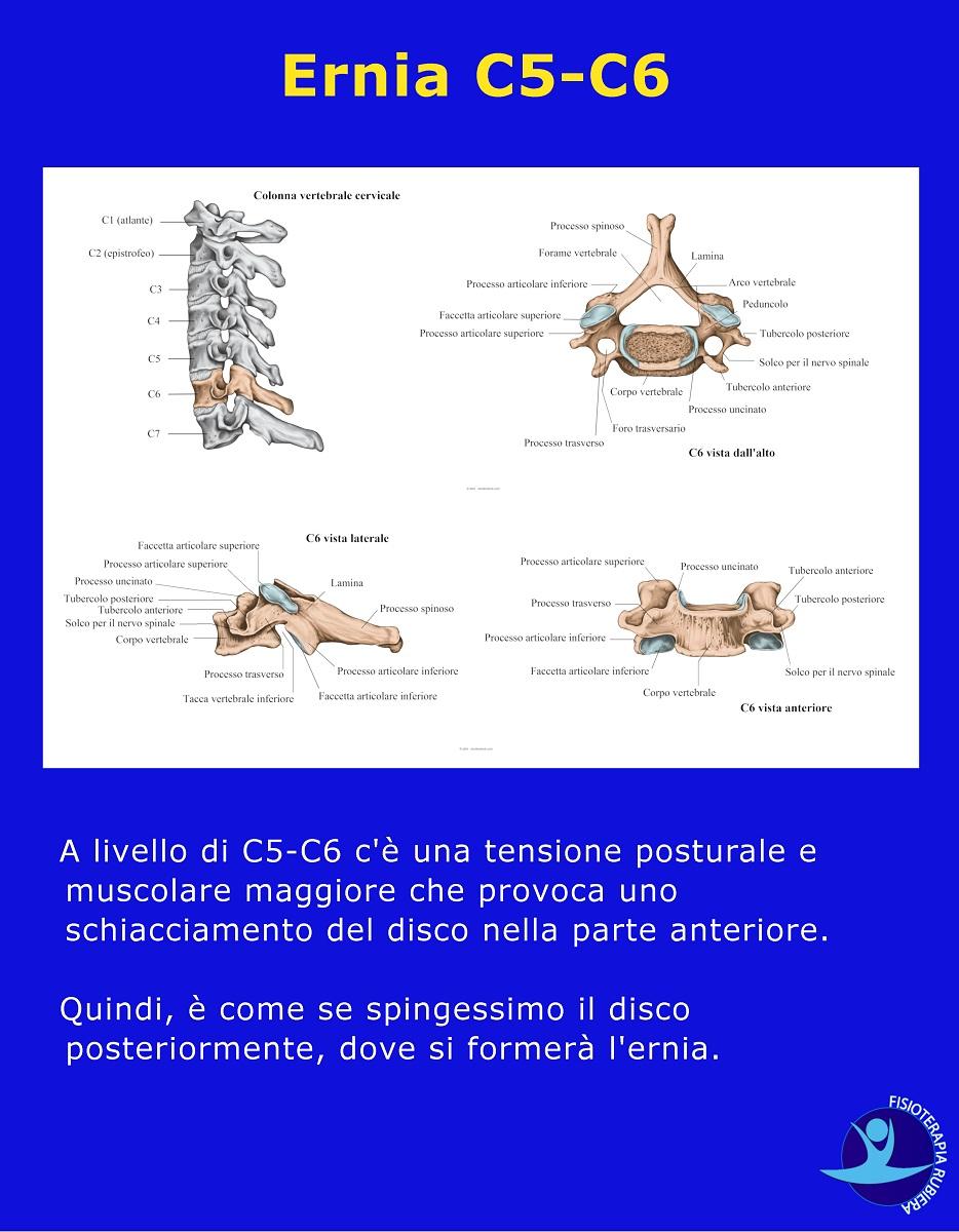 Ernia-C5-C6