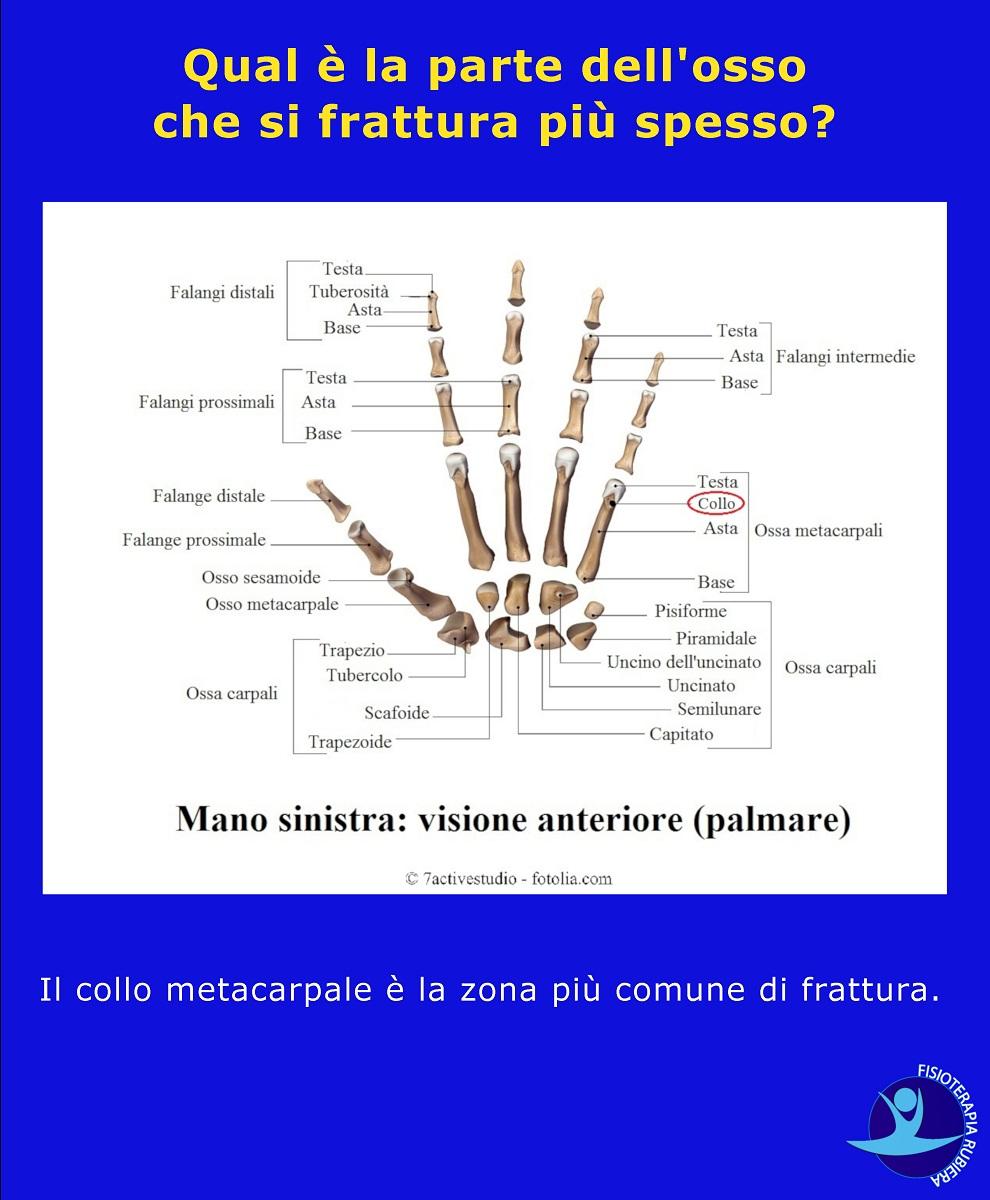 parte dell'osso che si frattura più spesso