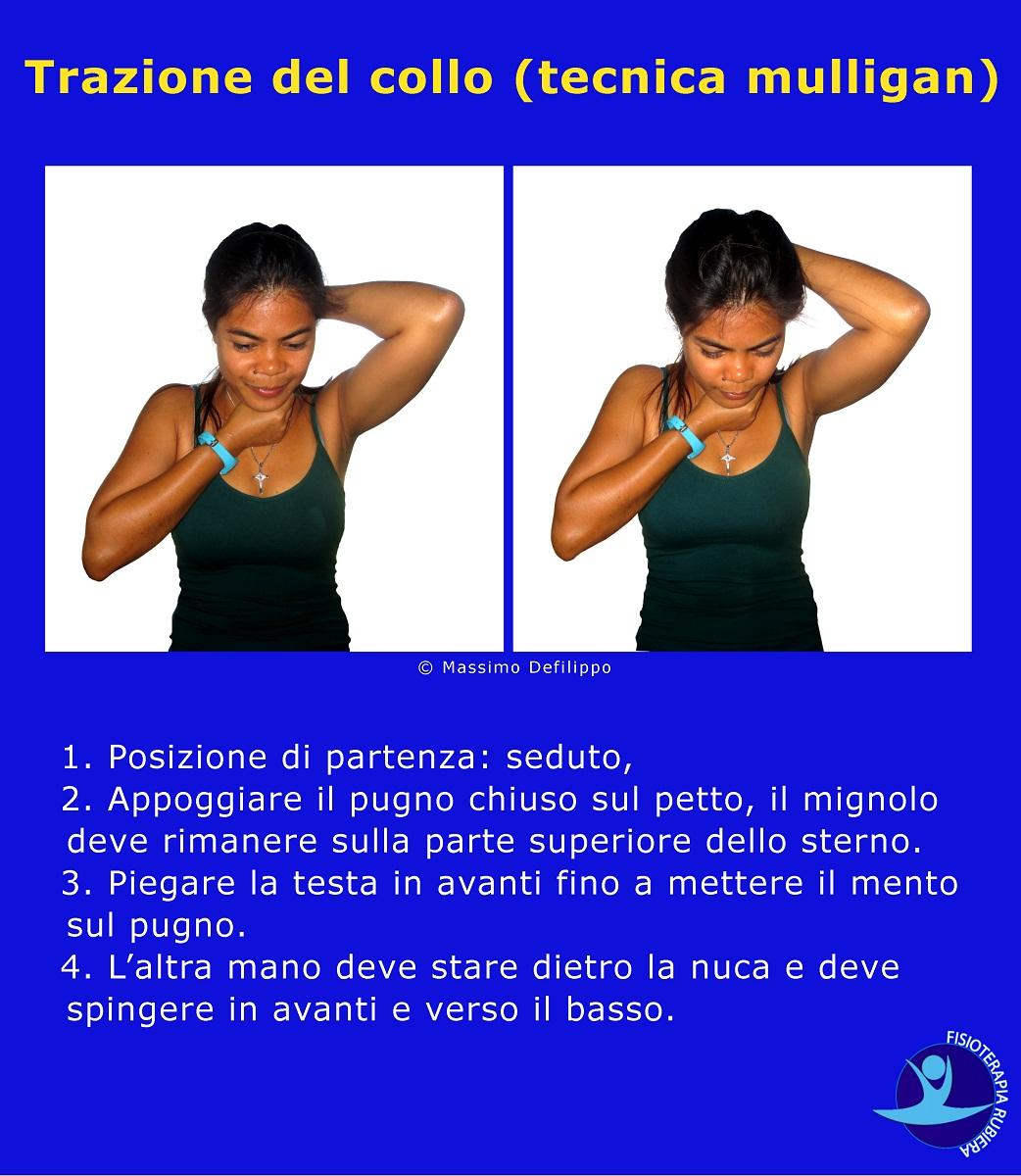 Trazione del collo (tecnica mulligan